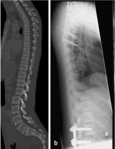 Thoracic fracuture with lumbar vertebral fracture dislocation