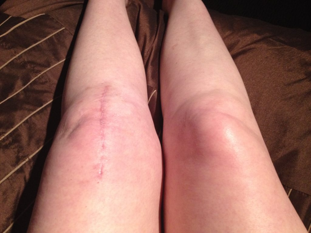 goodlooking TKR scar