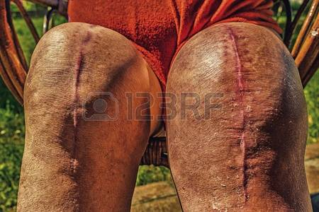 ugly TKA scar 1