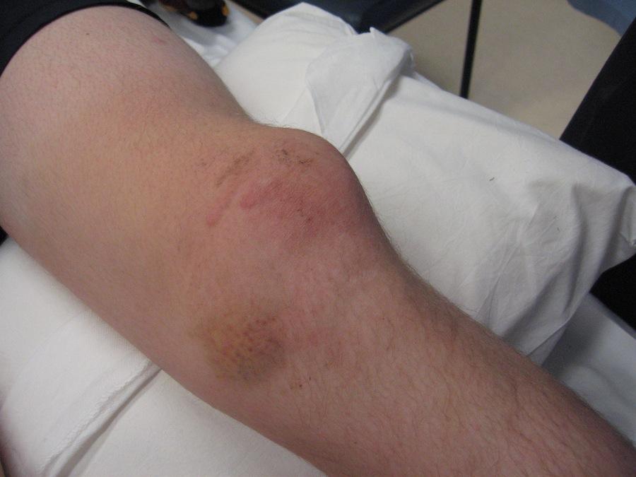 patella dislocation image