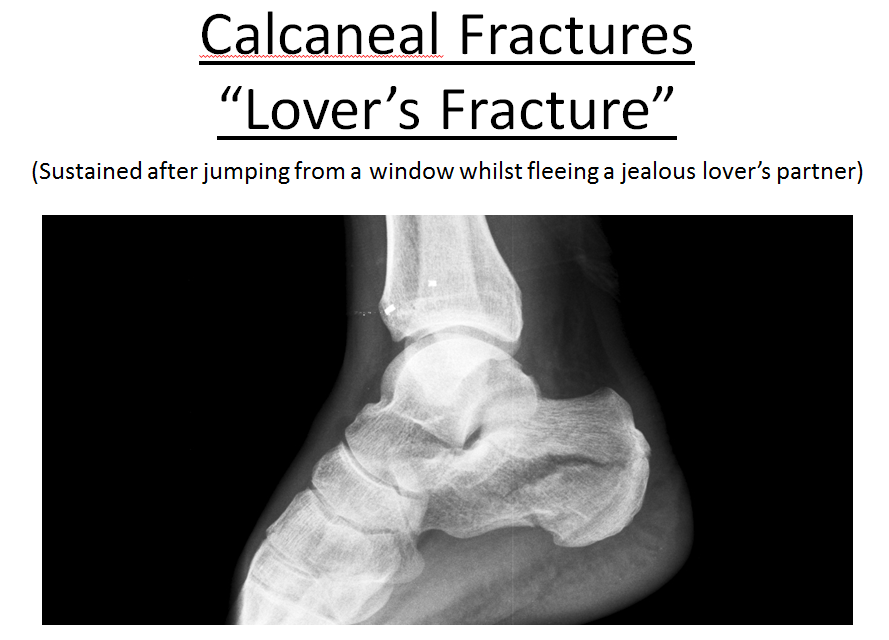 calcaneal-fractures